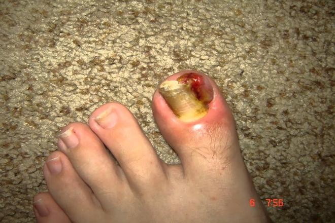 Ayak Tırnak Batması Tedavisi