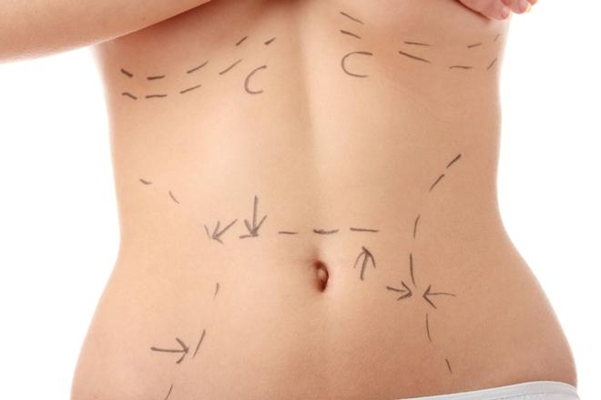 Liposuction Fiyatları 1