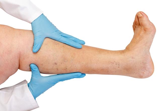 Varis Ameliyatı 2